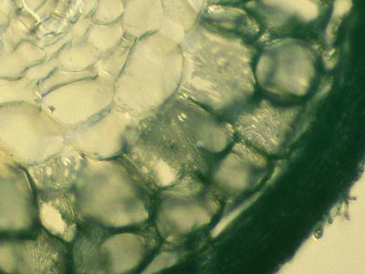 Ectomycorrhizal short roots (15KB)