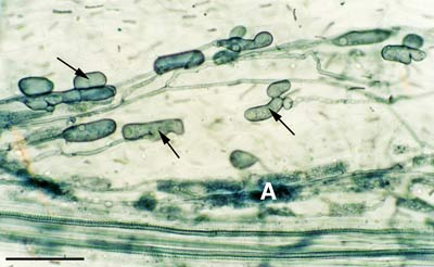 Acaulospora vesicles