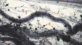 VAM soil hyphae (16KB)